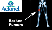 Actonel Femur Fracture Lawyer